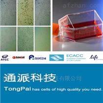 PANC-1細胞培養 人胰腺癌細胞